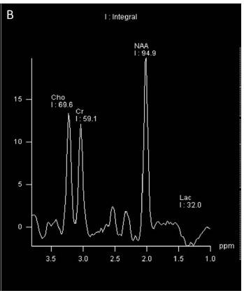 Risonanza magnetica spettroscopica e neuroinfiammazione