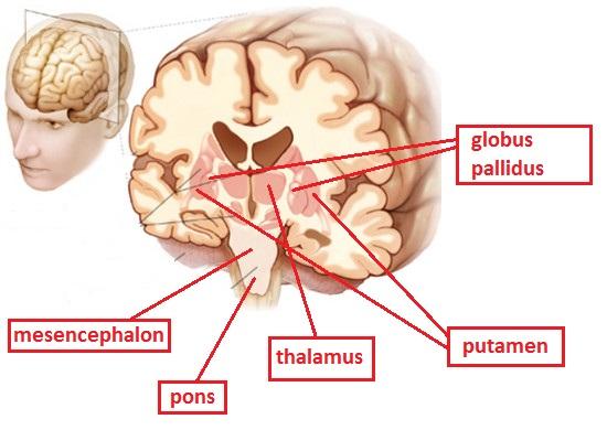 Casi di coinvolgimento del tronco encefalico nella for Disegni base della cabina