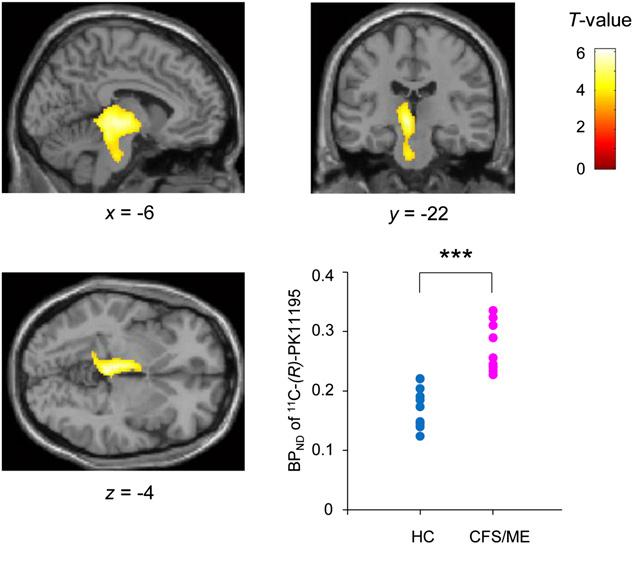 Mesencefalo, gangli della base eME/CFS