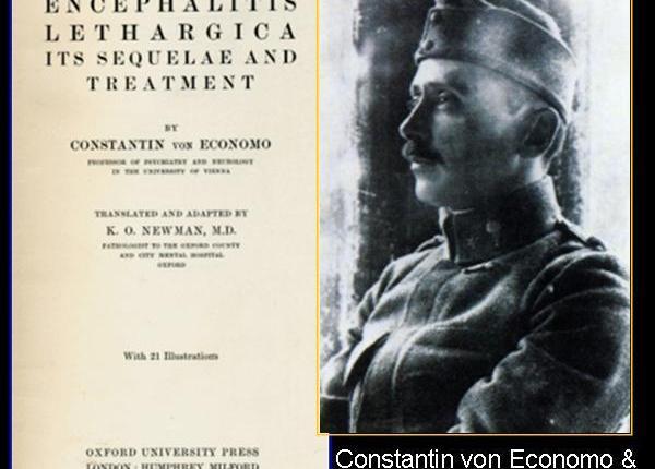 Mesencefalo, gangli della base e il fantasma dell'encefalite letargica